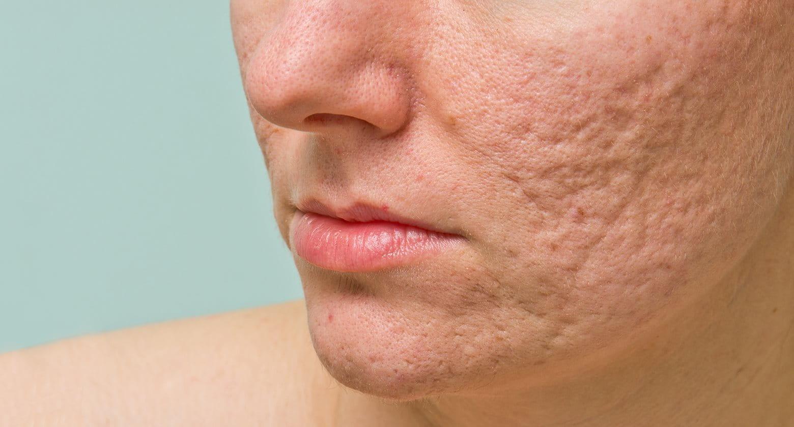 Cicatrices atróficas para secuela de acné.