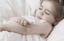 Como sanar las manchas rojas de la psoriasis