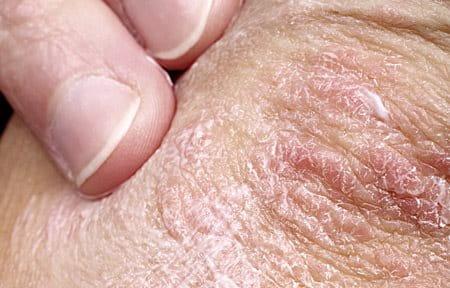 La hoja de laurel a la psoriasis las revocaciones