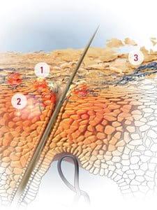 Skin kap y la psoriasis sobre la persona