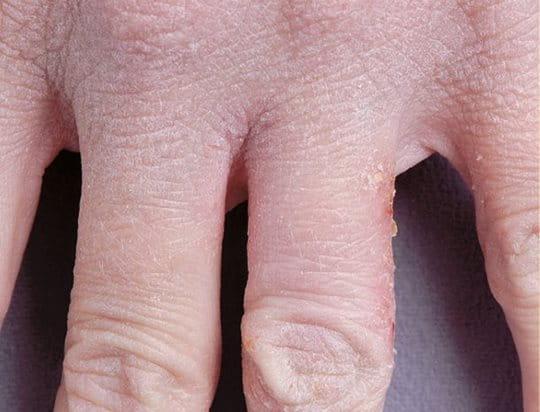 La psoriasis la agudización que quitar