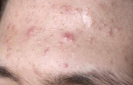 Frente con acné