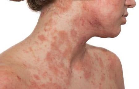 El estándar de la asistencia médica a atopicheskom la dermatitis