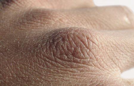 huid penis