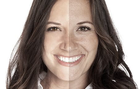 Side-by-side comparison of effects of premature ageing.